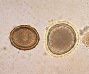 baylisascaris-procyonis-left-toxocara-right