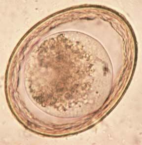 toxascaris-leonina-egg